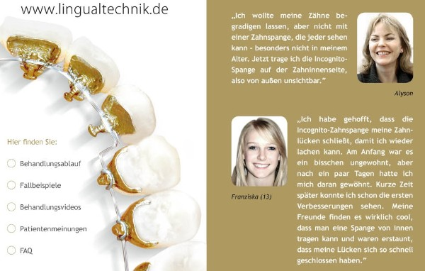Kieferorthopäde Zürich Kieferorthopädie Zürich Lingualtechnik Behandlung Video Dr.Brandt