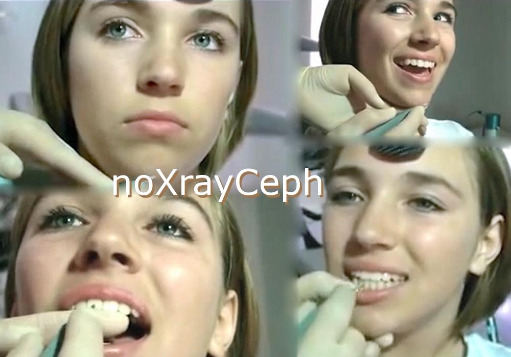 noXrayCeph Kieferorthopädie-ohne-Röntgen-Zürich-Dr-Brandt